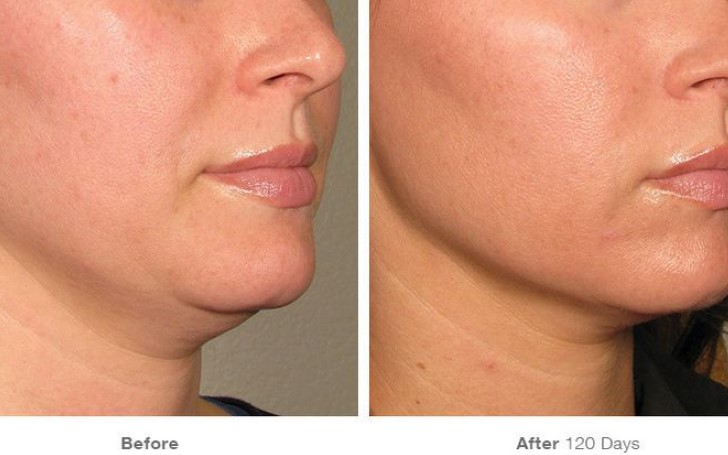 Everything You Need to Know About Laser Skin Tightening - Can It Give You A More Chiseled Jaw Line?