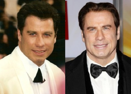 Before and After photos of John Travolta with opposite colored suits with bowties. Both smiling in black&white..