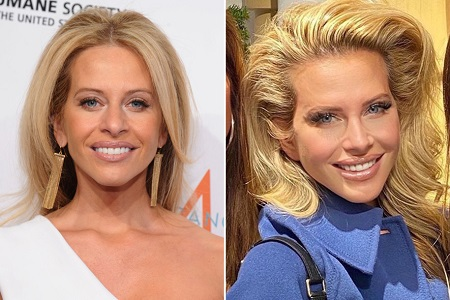 Dina Manzo Before and After Plastic Surgery: She did her nose and used some Botox to look younger.