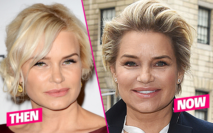 Yolanda Hadid Surgery - Did She Remove All Her Implants and Extensions?