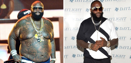 Rick Ross allegedly got weight loss surgery to get his weight down.
