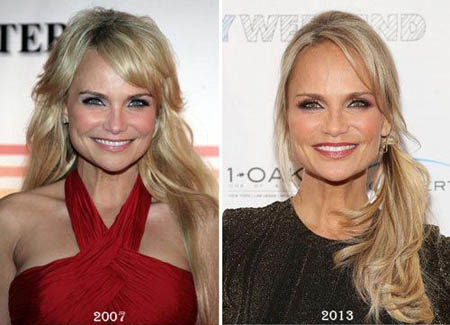 Kristin Chenoweth before and after picture where she claimed to be 88lbs.