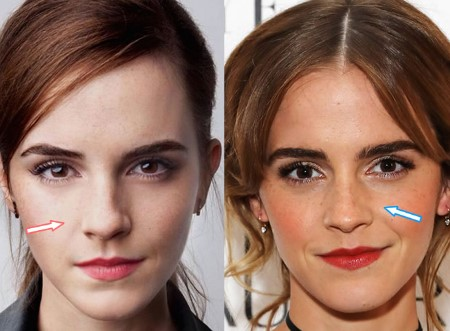 Emma Watson nose job pictures.