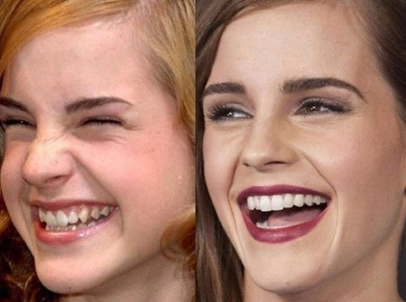 Emma Watson's teeth comparison pictures.