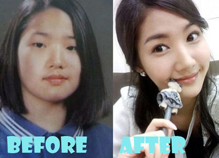 Before and after look at the changes made to Park Min Young nose.