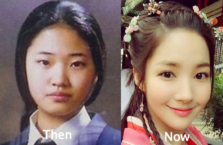 Park Min Young face also seems to have gone through some surgeries.