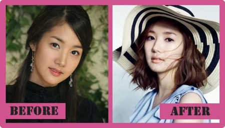 Before and After comparisons of Park Min Young features.