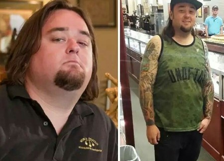 Chumlee's weight loss surgery journey