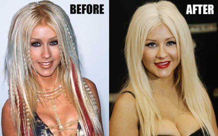 Did Christina Aguilera Get Plastic Surgery — The Answer Is Here!