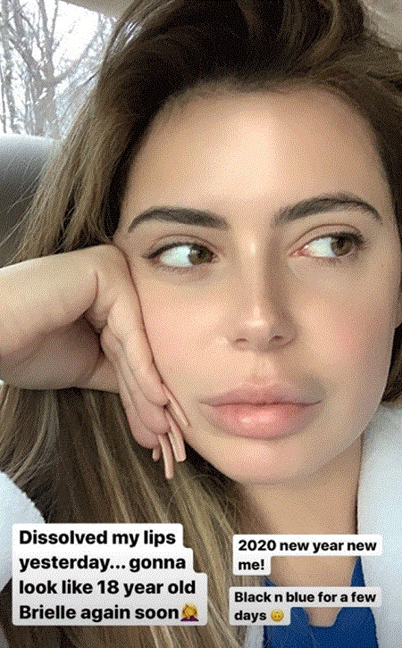 Brielle Biermann's photo from her Instagram story, taking a selfie by declaring she dissolved her lips.