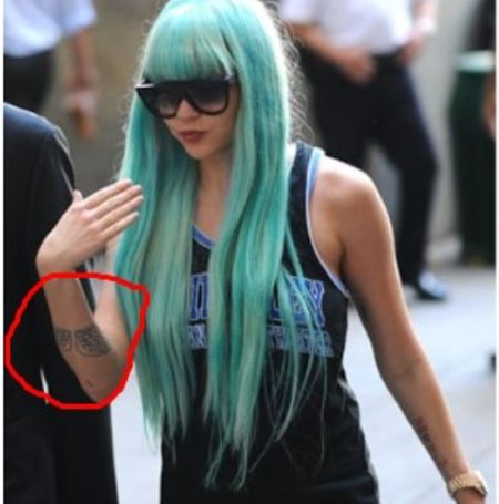 Amanda Bynes went through the tattoo removal process where she erased her angel wing tattoo.