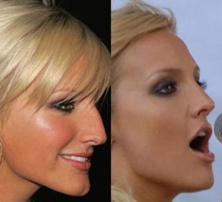 Before and after nose job pictures of Ashlee Simpson.