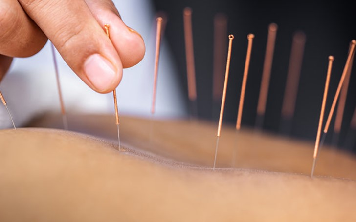 Why Acupuncture Can Lead To A Healthier And More Beautiful You