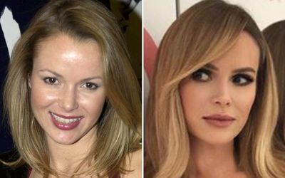 Amanda Holden Plastic Surgery - She Looks Better Now Than She Did in Her Twenties!