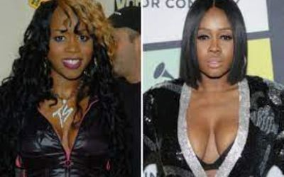 Did Remy Ma Undergo Plastic Surgery? Find All the Details Here