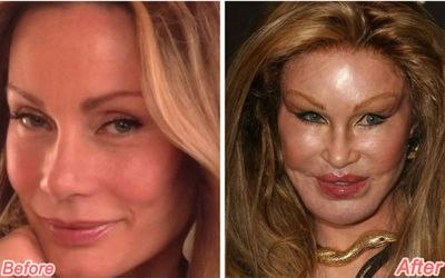 Jocelyn Wildenstein Before Plastic Surgery: All Details