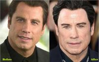American singer and actor John Travolta Went Under The Knife; Before and After Pictures