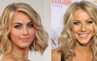 Did Julianne Hough Get Plastic Surgery?