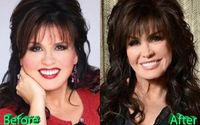 Marie Osmond Recalls Her Weight Struggles