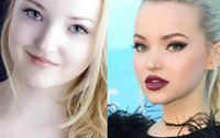 Full Details on Dove Cameron Plastic Surgery
