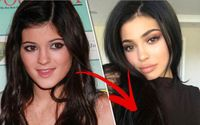 Kylie Jenner Slams Plastic Surgery Rumors and Reveals a Good Reason Her Looks Have Transformed